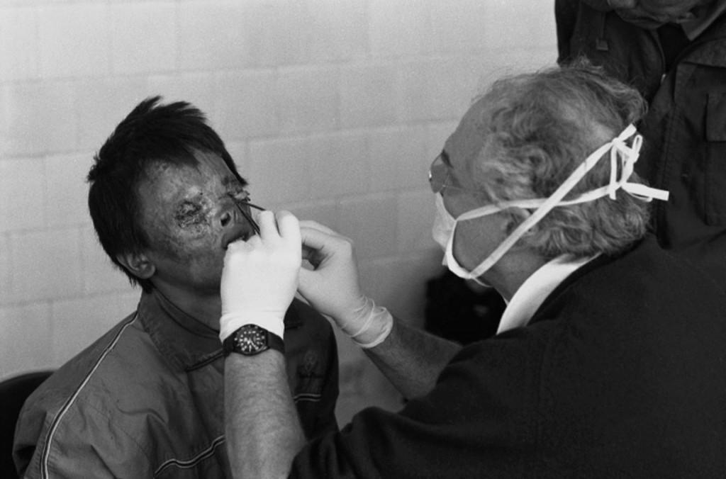 Dottor Giancarlo Liguori - Chirurgo Plastico a Torino - Medico Volontario in Missioni Volontariato Chirurgia Plastica