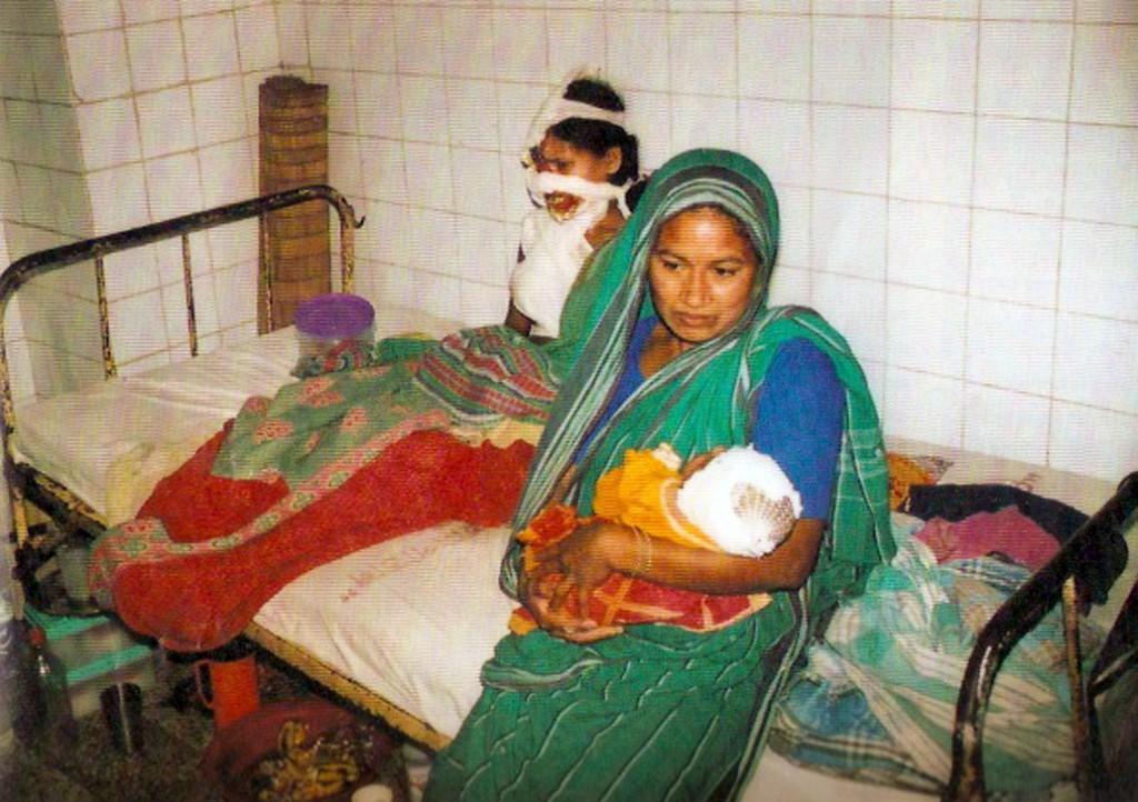 Dottor Giancarlo Liguori - Chirurgo Plastico a Torino - Missioni Volontariato Chirurgia Plastica - Supporto Donne Acidate Bangladesh